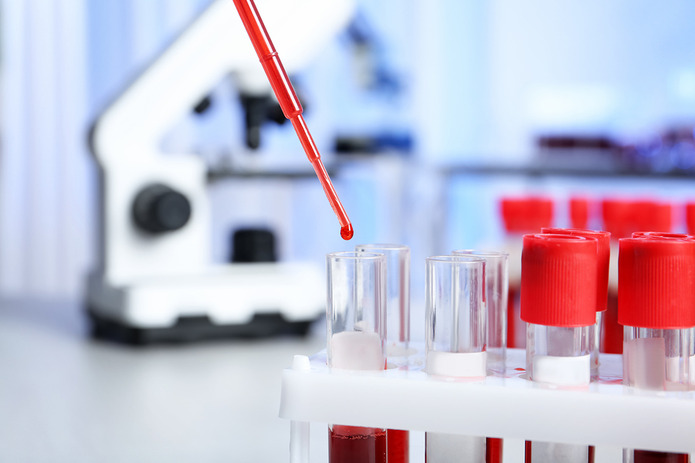 Virus Laboratory Blood Testing